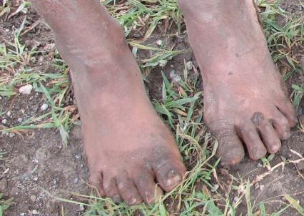 no_shoes